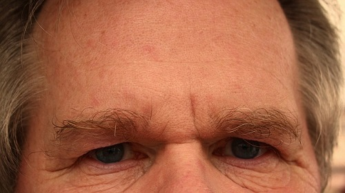 forehead-65059_500